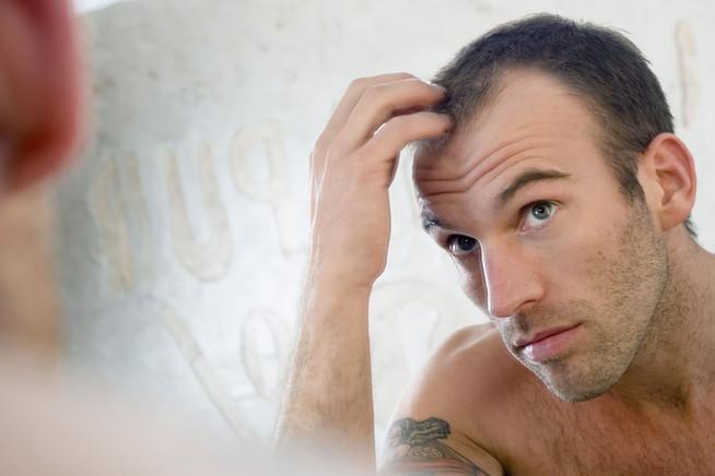 Mit Erblich Bedingtem Haarausfall Muss Sich Heute Niemand Mehr